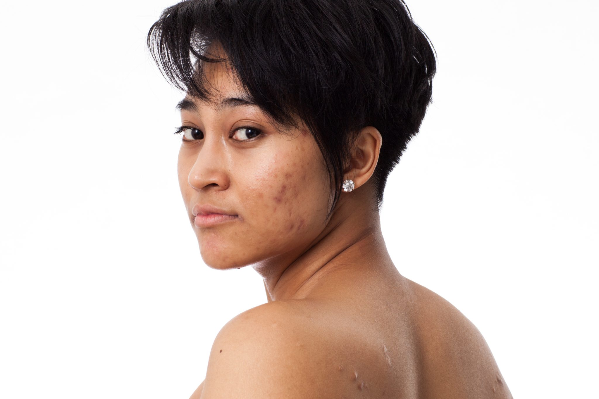 Portrait of young woman with acne and scars