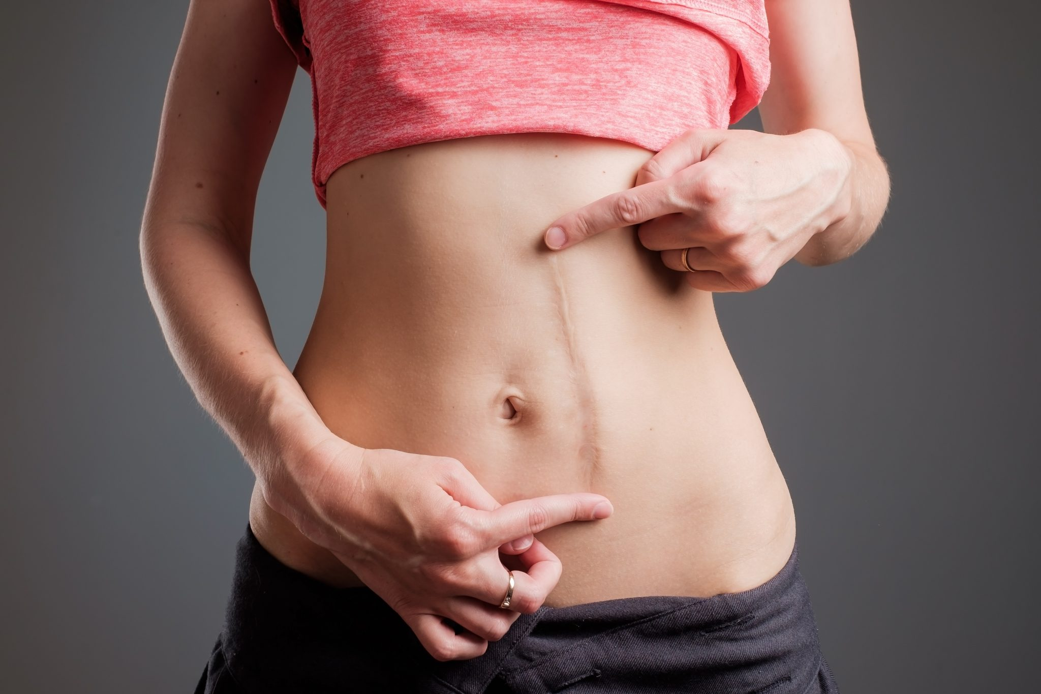 European woman with long abdominal scars after operation standing on black color