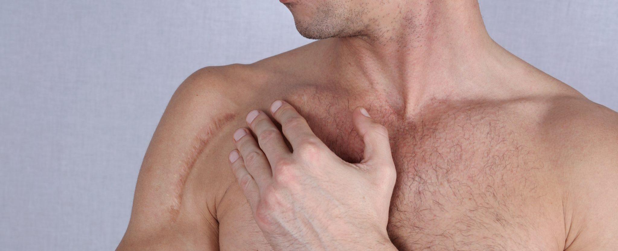 Man man with scar on his shoulder. Laser Scar Reduction concept